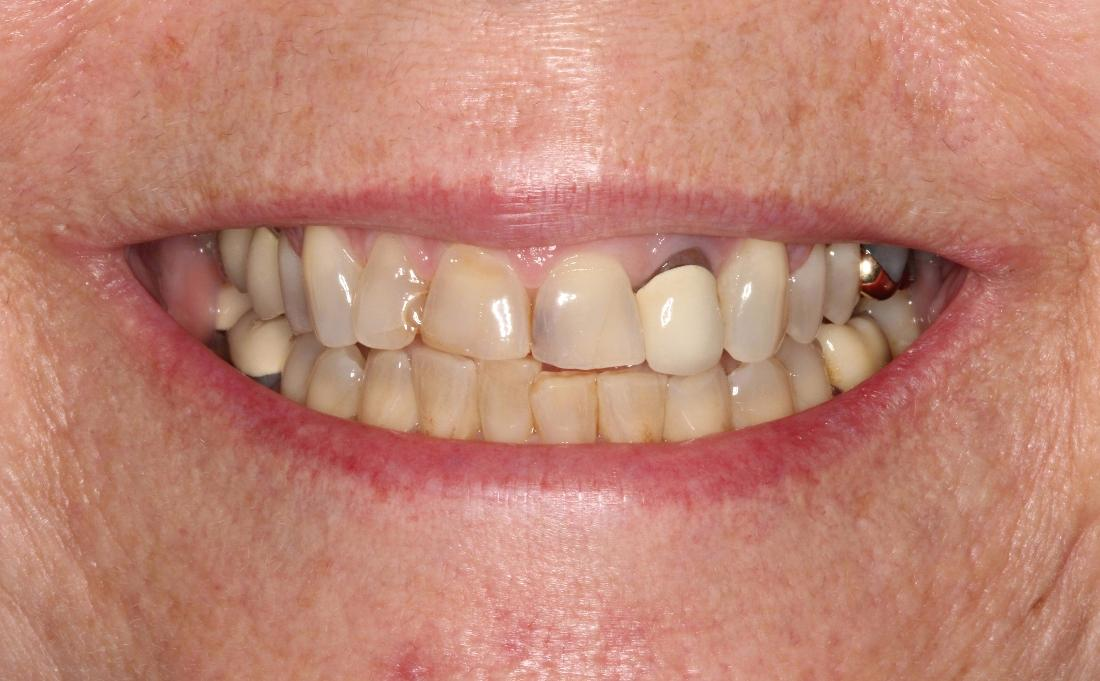 Stained Teeth Before Teeth Whitening l Dentist Orlando FL