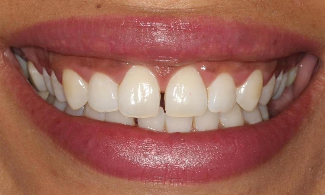Invisalign Deals Orlando Lamoureph Blog
