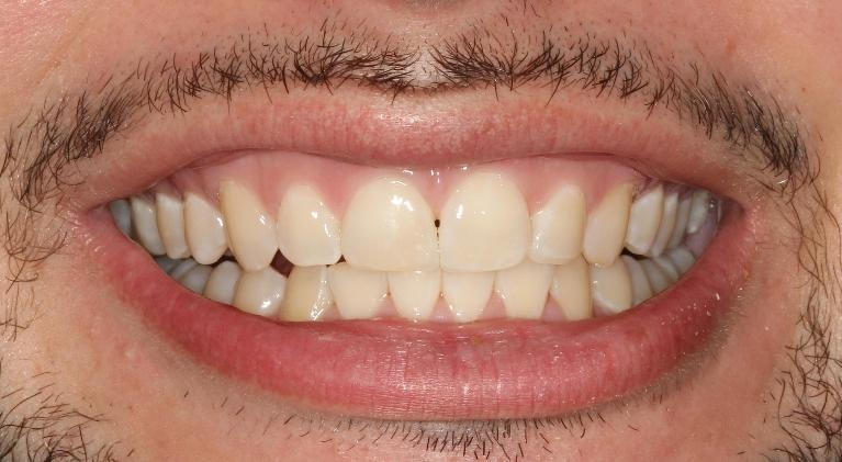 Anthony-Orthodontics-After-Image