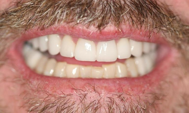 Anthony-Implants-Crowns-Veneers-After-Image