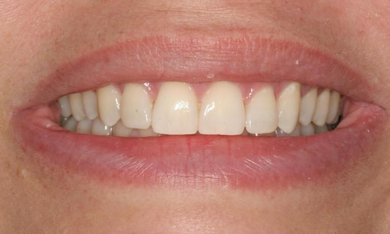 Astrid-Orthodontics-6-Month-Smiles-After-Image