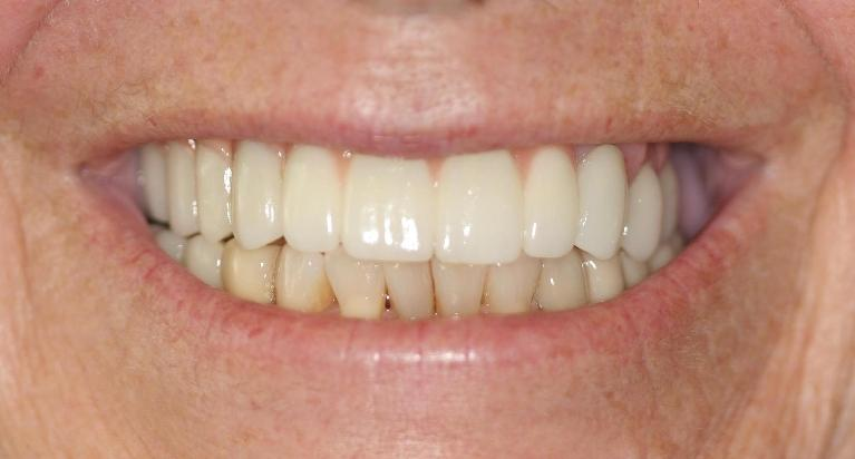 Audrey-Veneers-Crowns-and-Implants-After-Image
