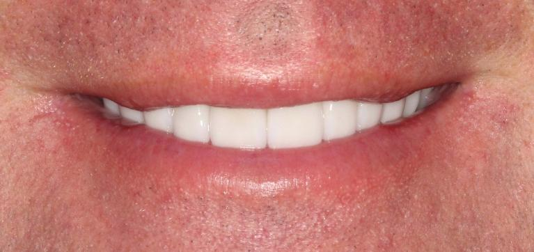Brian-Porcelain-Veneers-and-Crowns-After-Image