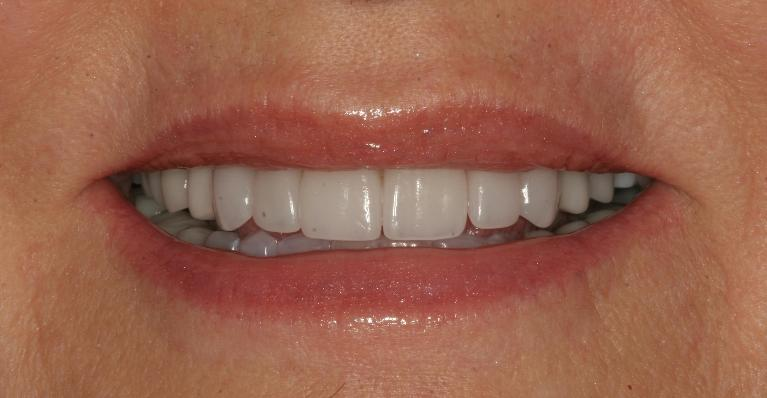 Candice-Porcelain-crowns-and-veneers-After-Image