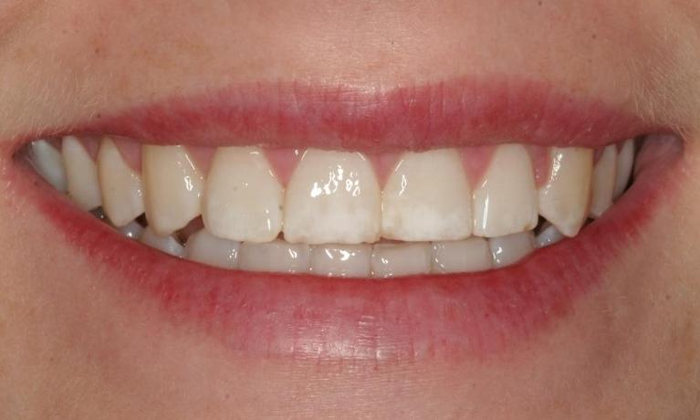 Candice-Orthodontics-After-Image