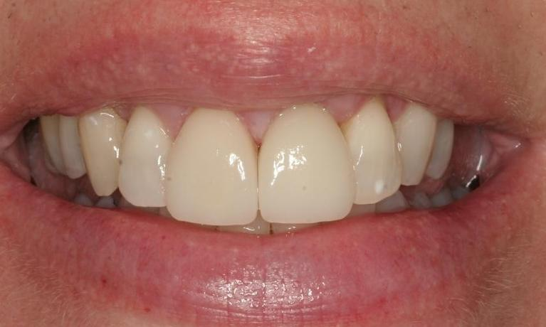 Cathi-6-Month-Smiles-and-Porcelain-Crowns-After-Image
