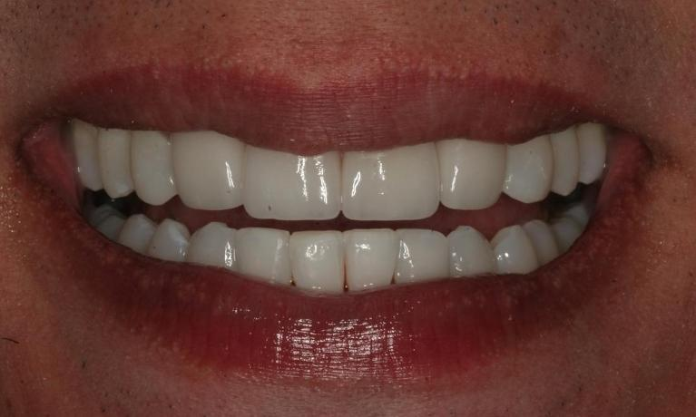 Chris-6-Month-Smiles-and-Porcelain-Veneers-After-Image