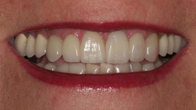 Christine-Poreclain-Veneers-and-Crowns-After-Image