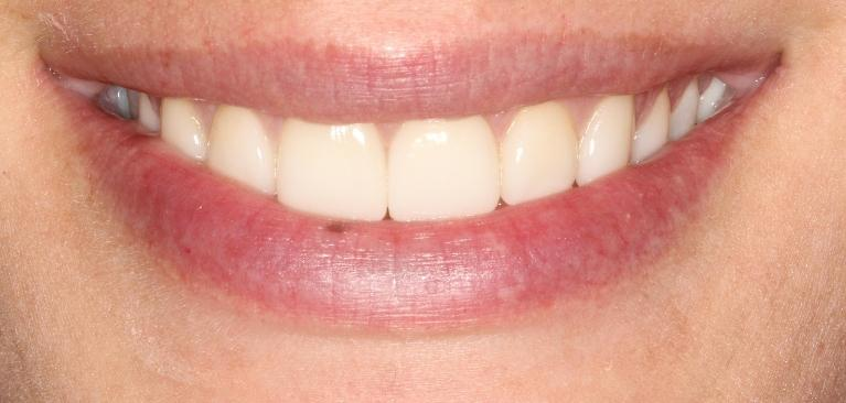 Christy-Veneers-After-Image