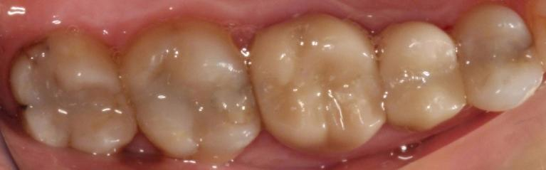 Composite-Fillings-and-Crowns-After-Image