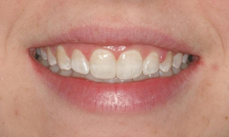 Delaney-Orthodontics-and-Bondings-After-Image