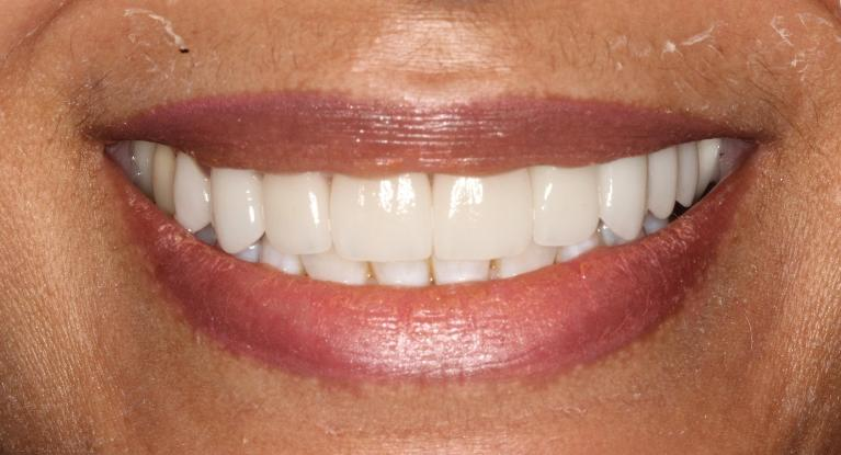 Dinah-Porcelain-Veneers-and-Crowns-After-Image