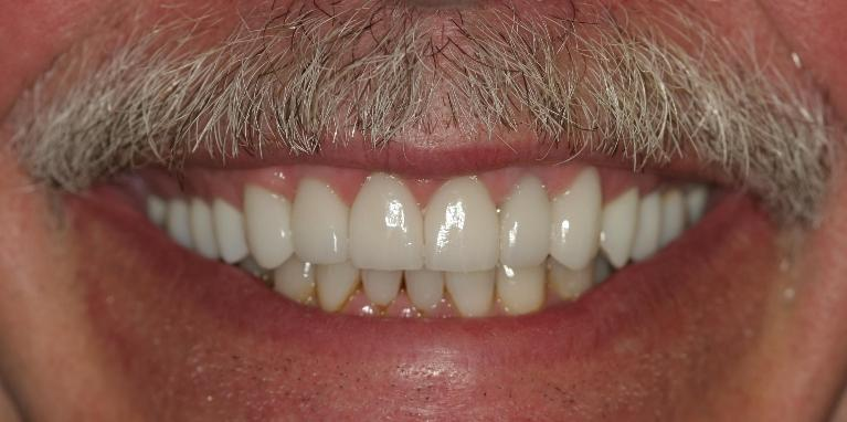 Ed-Veneers-and-Crowns-After-Image