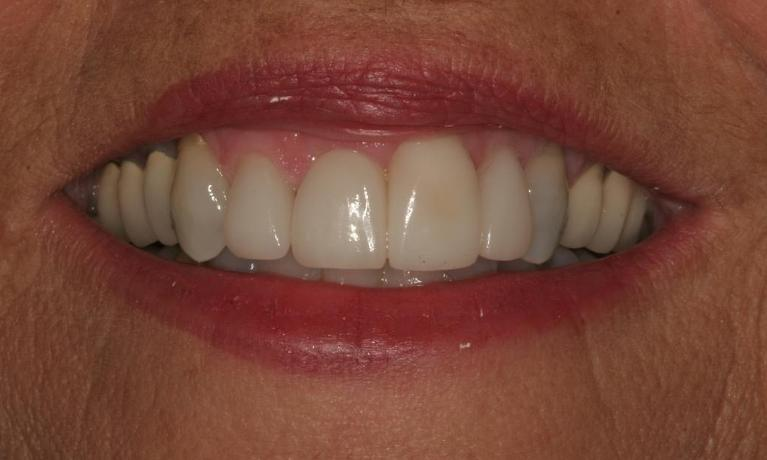 Evelyn-Porcelain-Veneers-and-Crowns-After-Image