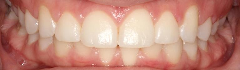 Gum-Recontouring-After-Image
