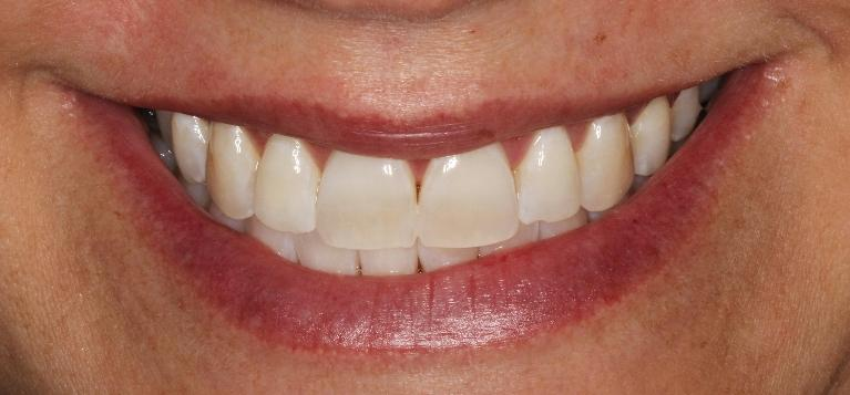 Heather-Zoom-Whitening-After-Image