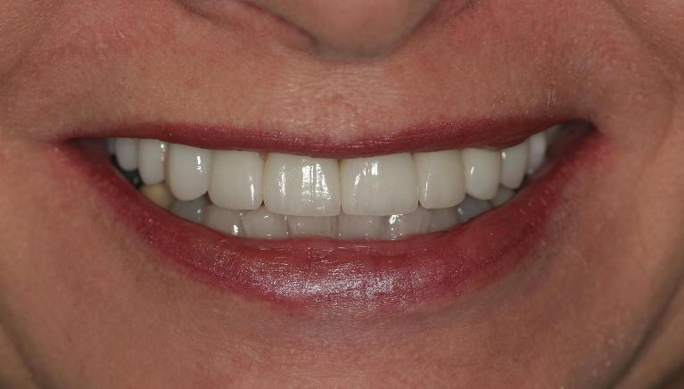 Holly-Veneers-and-Crowns-After-Image