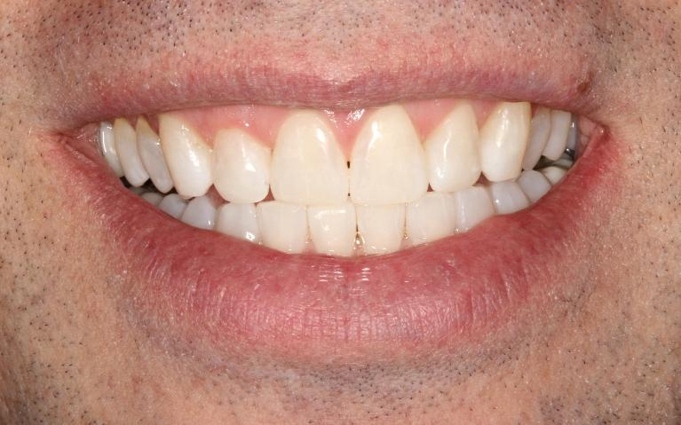 Jeff-Invisalign-and-Composite-Bondings-After-Image