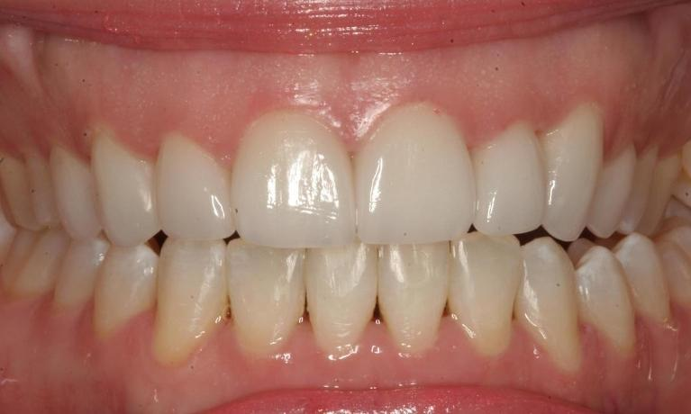 Kathy-Orthodontics-Cosmetics-After-Image