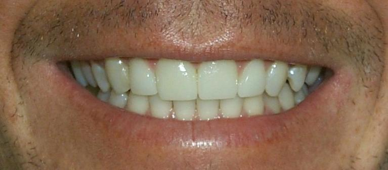 Mark-Veneers-After-Image