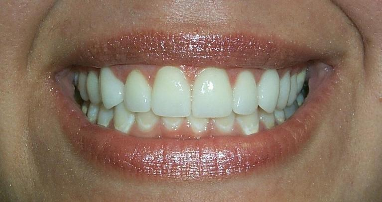 Mary-Veneers-After-Image