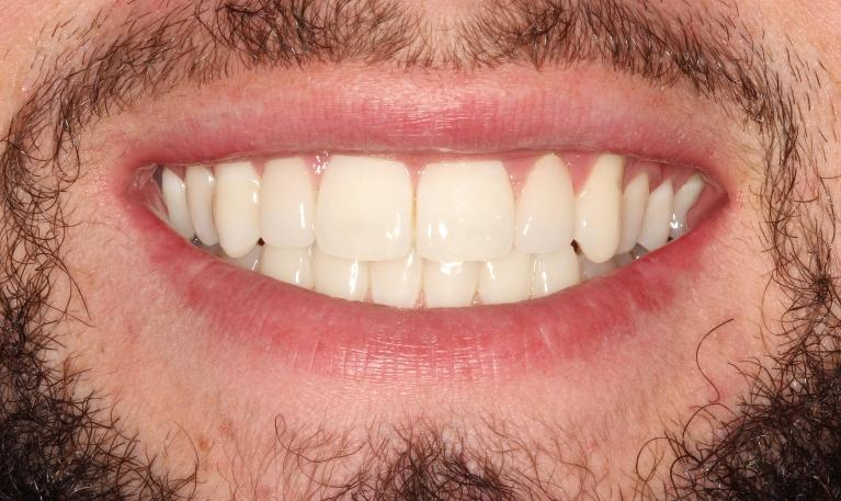 Mike-Veneers-After-Image