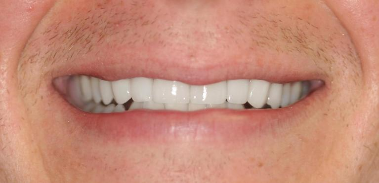 Ryan-Veneers-After-Image