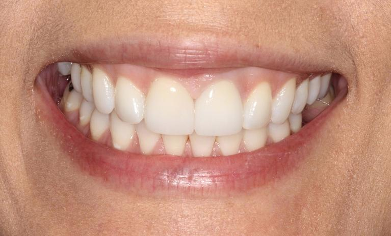 Sandra-Porcelain-Veneers-and-Crowns-After-Image