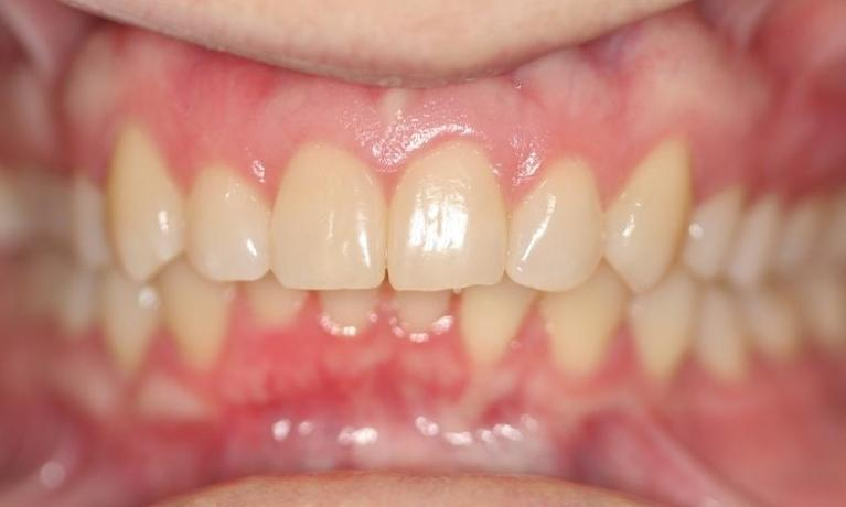 Stacy-Invisalign-After-Image