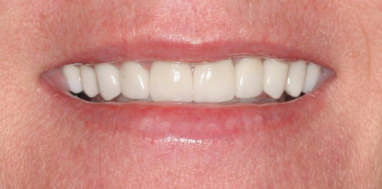Susan-6-Month-Smiles-and-Porcelain-Crowns-and-Veneers-After-Image