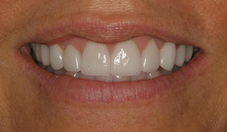 Suzanne-Veneers-After-Image