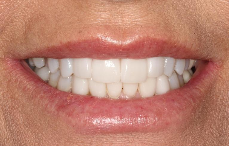 Teresa-6-Month-Smiles-Upper-and-lower-Veneers-After-Image