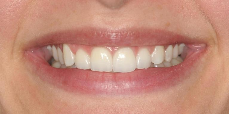 Tiffany-Veneers-and-Crowns-After-Image