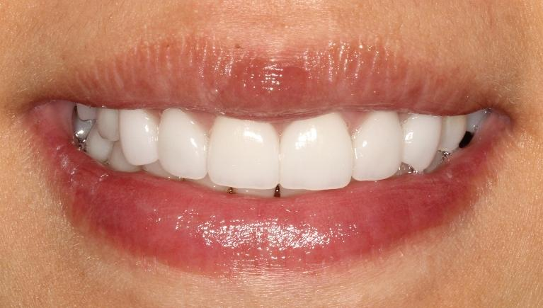 Xin-Veneers-and-Crowns-After-Image
