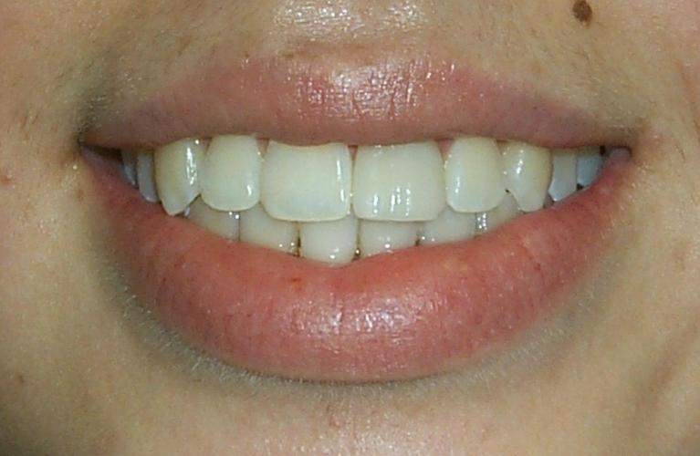 Angie-Zoom-Whitening-Before-Image