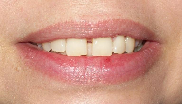 Astrid-Orthodontics-6-Month-Smiles-Before-Image