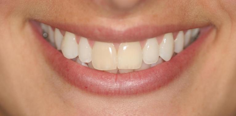 Brittany-Veneers-Before-Image