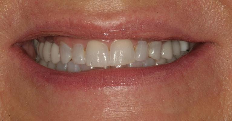 Candice-Porcelain-crowns-and-veneers-Before-Image