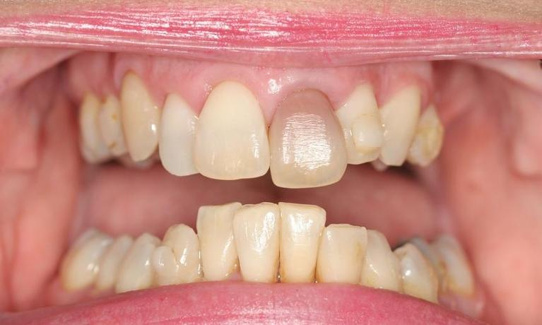 Cathi-6-Month-Smiles-and-Porcelain-Crowns-Before-Image
