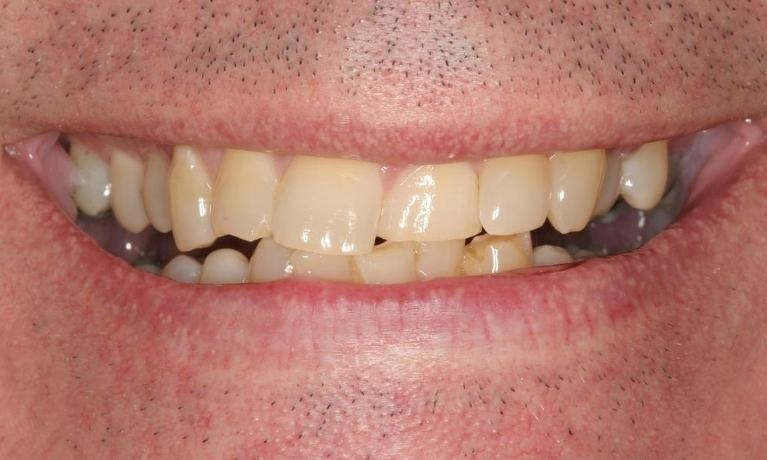 Chris-Full-Mouth-Rehabilitation-with-Porcelain-Crowns-Veneers-Before-Image