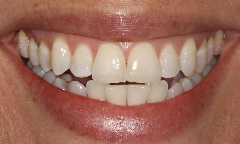 Denise-Invisalign-and-Porcelain-Veneers-Before-Image