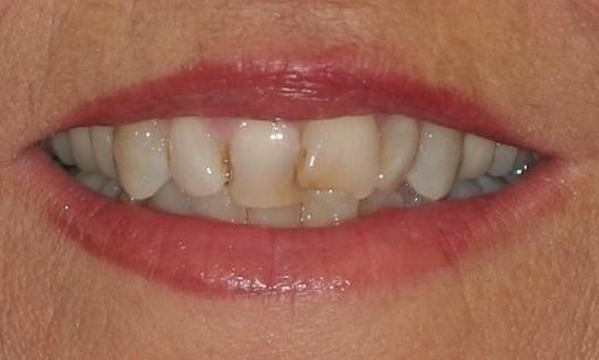 Evelyn-Porcelain-Veneers-and-Crowns-Before-Image