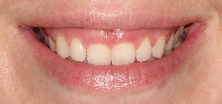 Gingivectomy-Before-Image