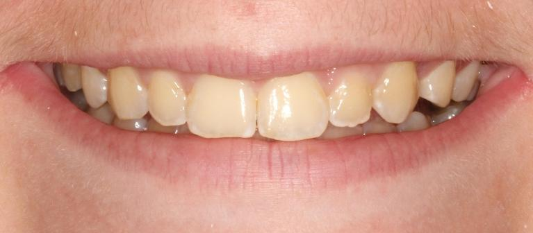 Haley-Zoom-Whitening-Before-Image