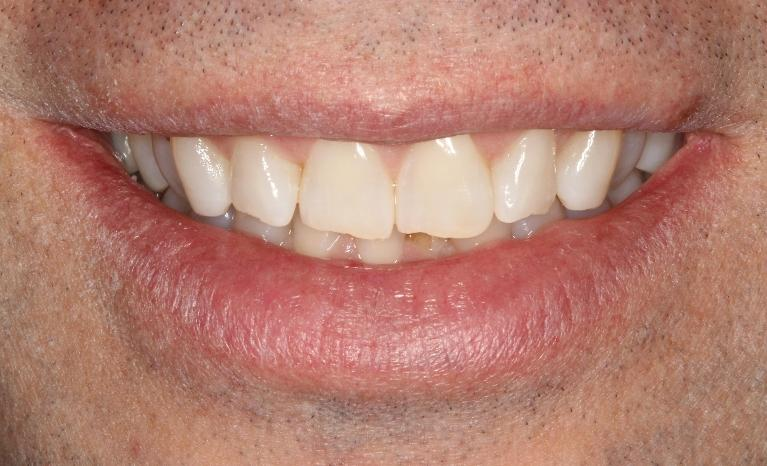 Jeff-Invisalign-and-Composite-Bondings-Before-Image
