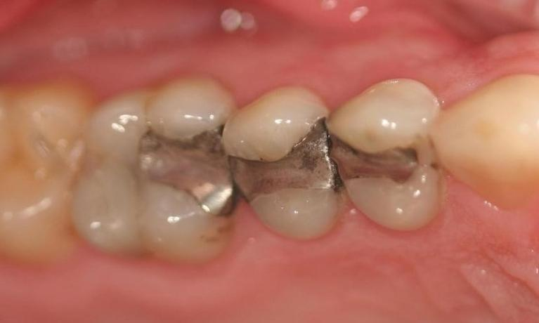 Fillings-Onlay-Before-Image