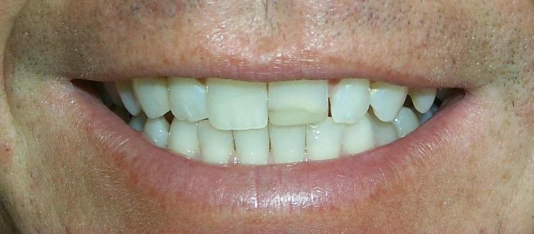 Mark-Veneers-Before-Image