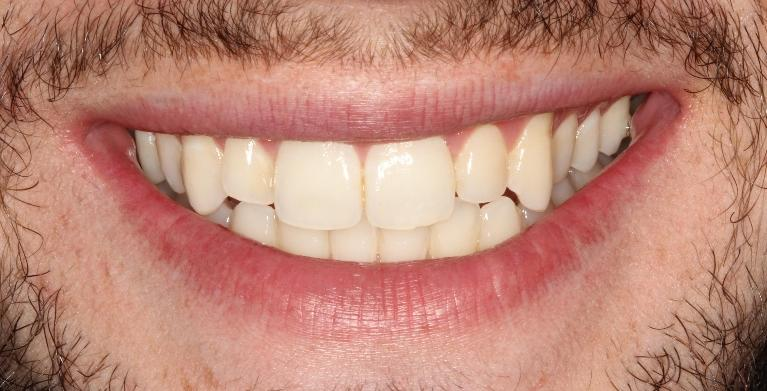 Mike-Veneers-Before-Image