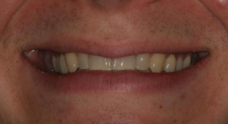 Ryan-Veneers-Before-Image