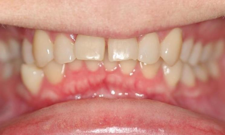 Stacy-Invisalign-Before-Image